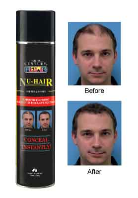 Nu Hair- Instant Spray On Hair, Aerosol Can 7oz